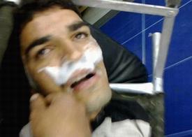 sarin victim